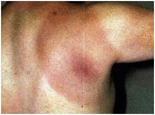 Lyme Disease - Tick Bite