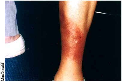 Skin discoloration from Lyme Disease